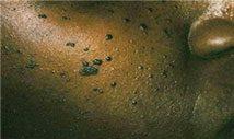 s_Dermatosis-Papulosa-Nigra